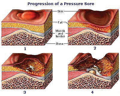 How to spot a Pressure Ulcer before it becomes a Serious Problem